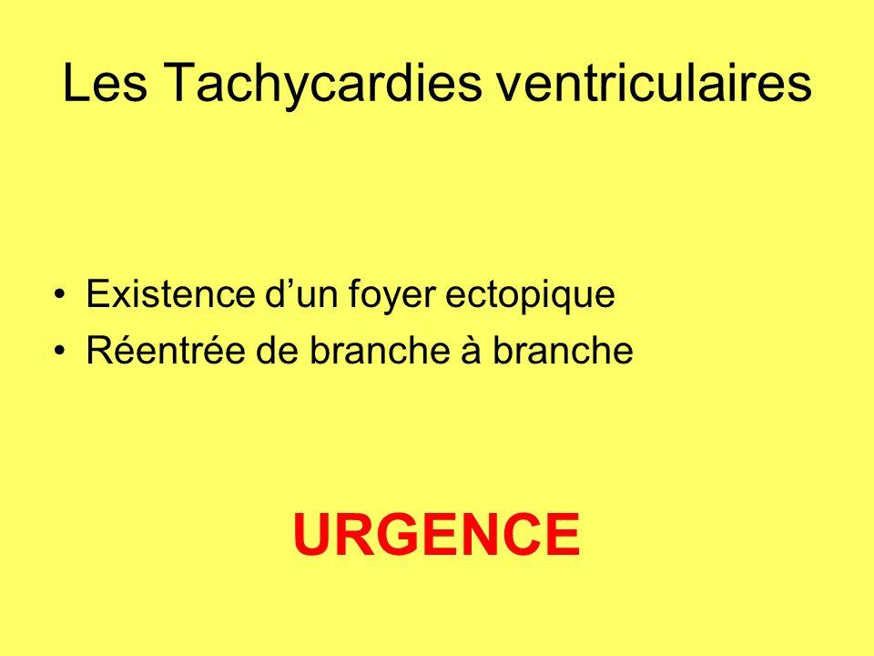 Les Tachycardies ventriculaires