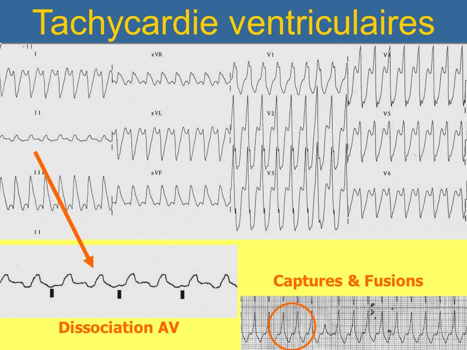 Tachycardie ventriculaires