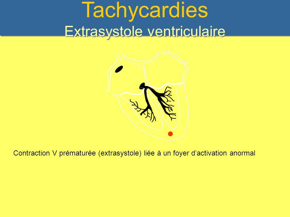 Tachycardies Extrasystole ventriculaire
