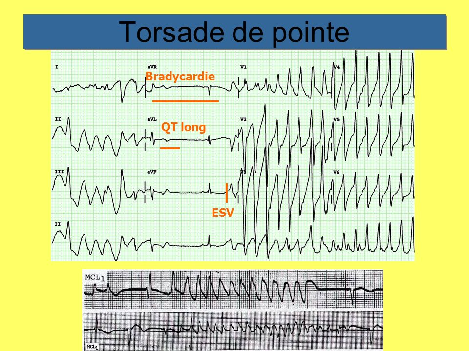 Torsade de pointe Bradycardie QT long ESV