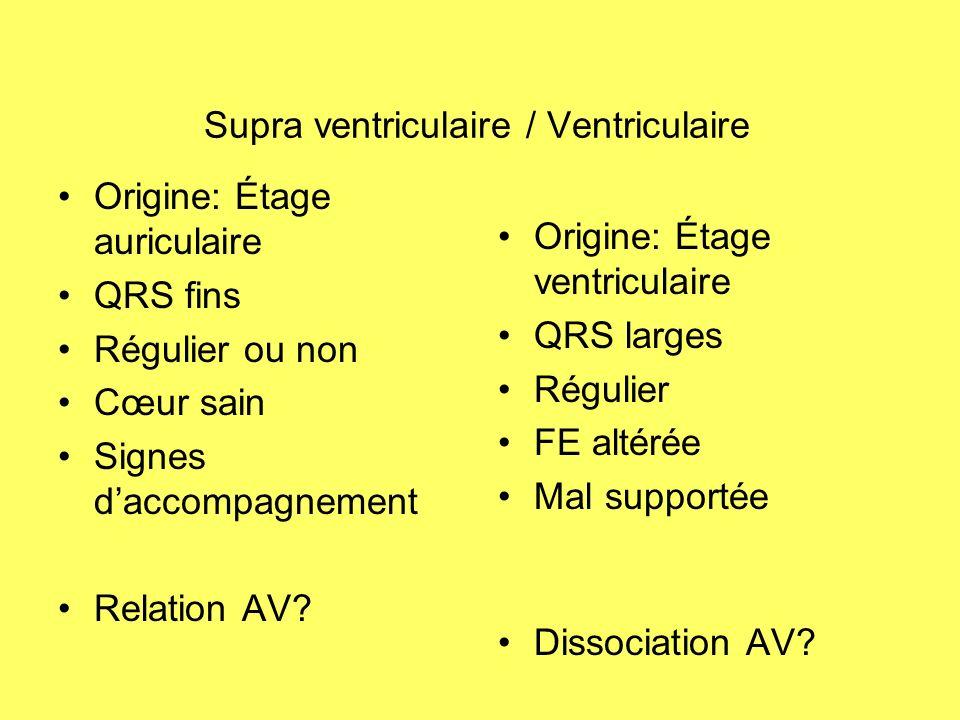 Supra ventriculaire / Ventriculaire