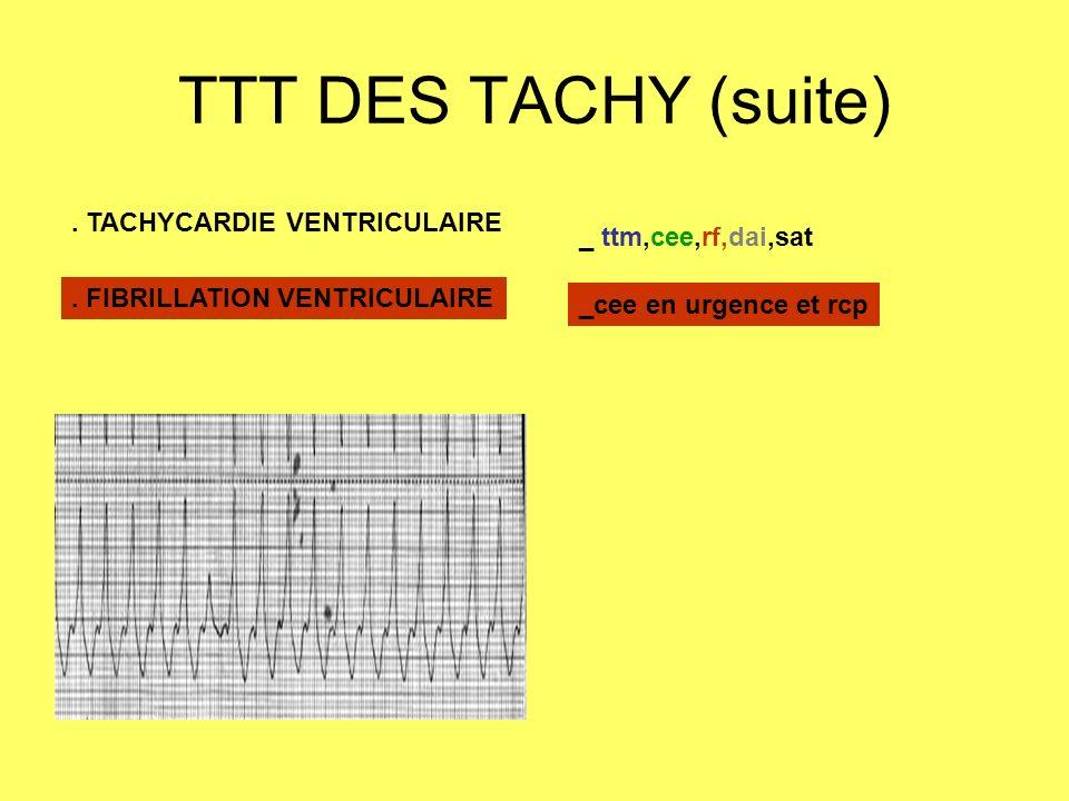 TTT DES TACHY (suite) . TACHYCARDIE VENTRICULAIRE _ ttm,cee,rf,dai,sat