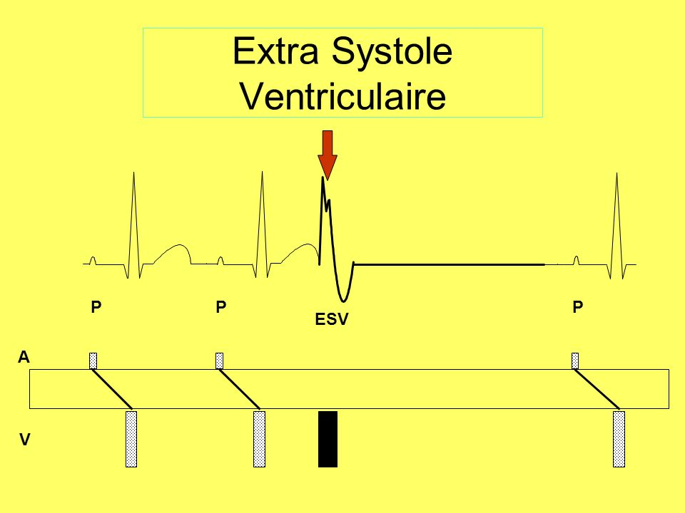 Extra Systole Ventriculaire