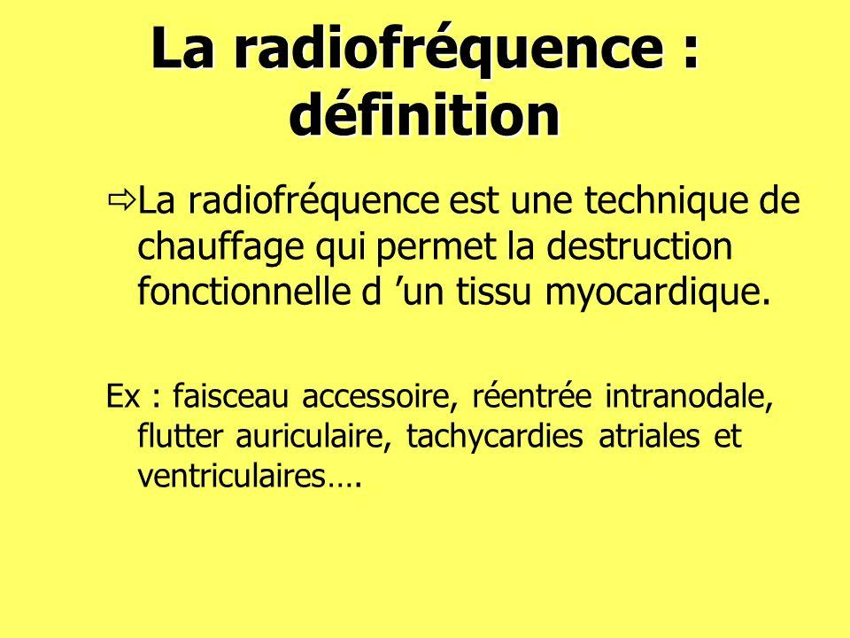 La radiofréquence : définition