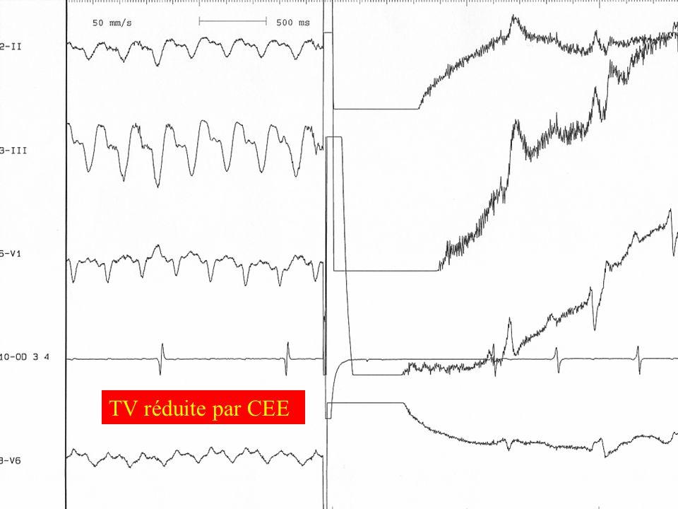 TV réduite par CEE