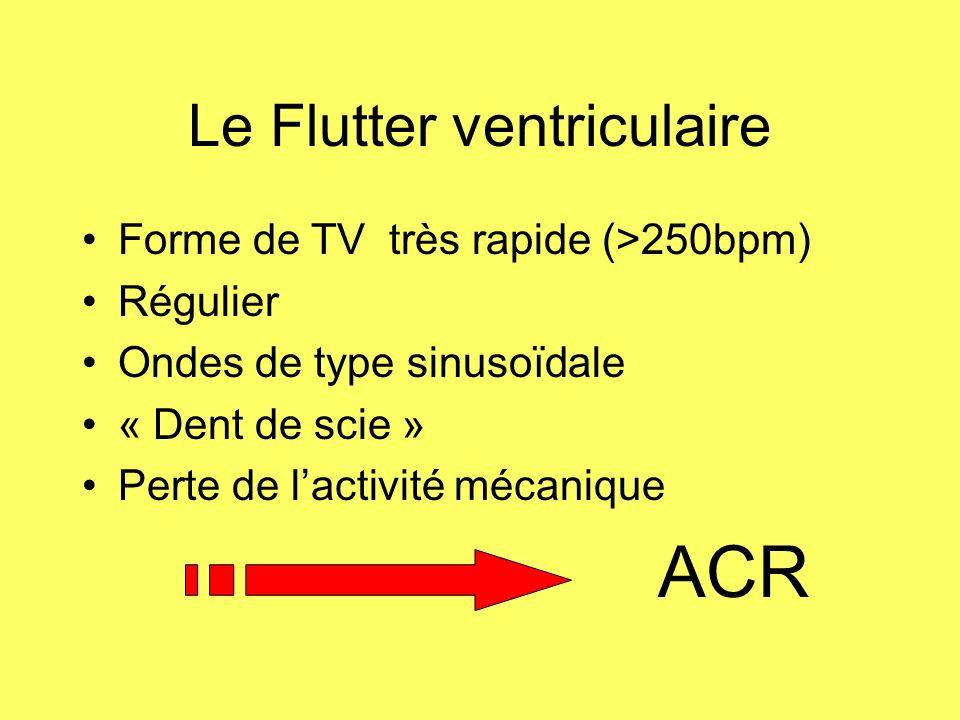 Le Flutter ventriculaire