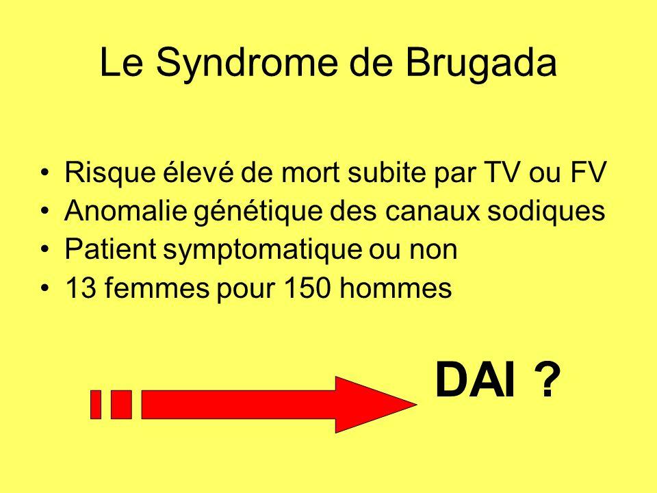 DAI Le Syndrome de Brugada Risque élevé de mort subite par TV ou FV