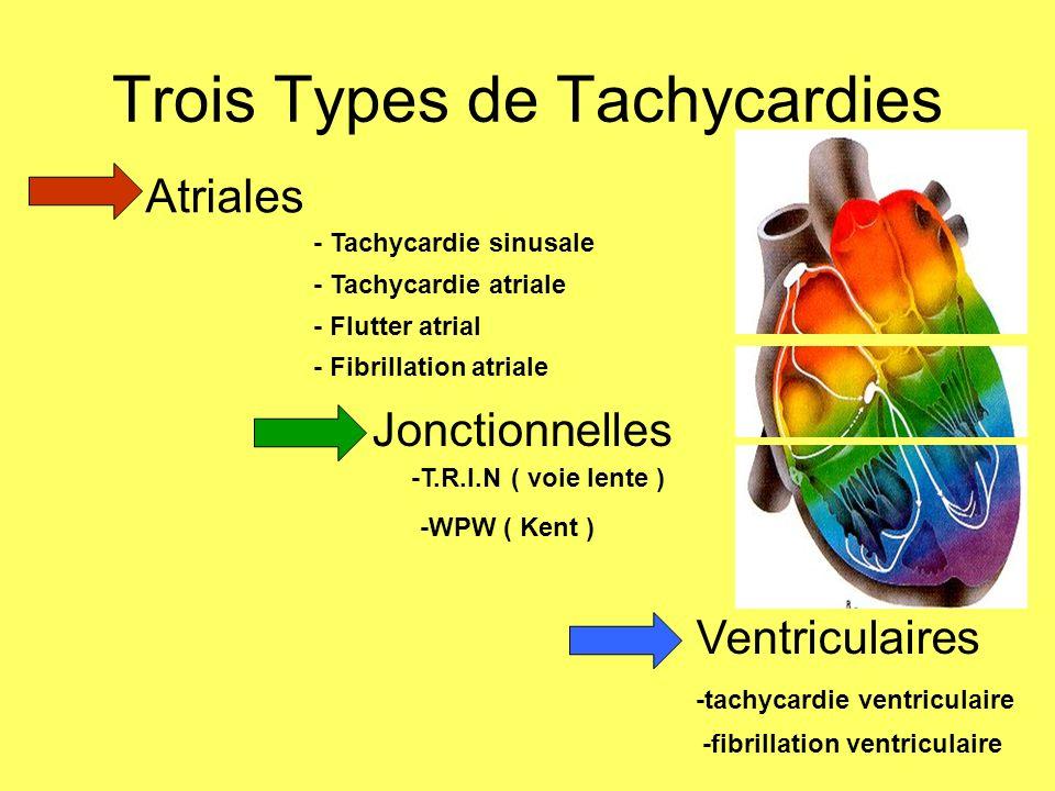 Trois Types de Tachycardies