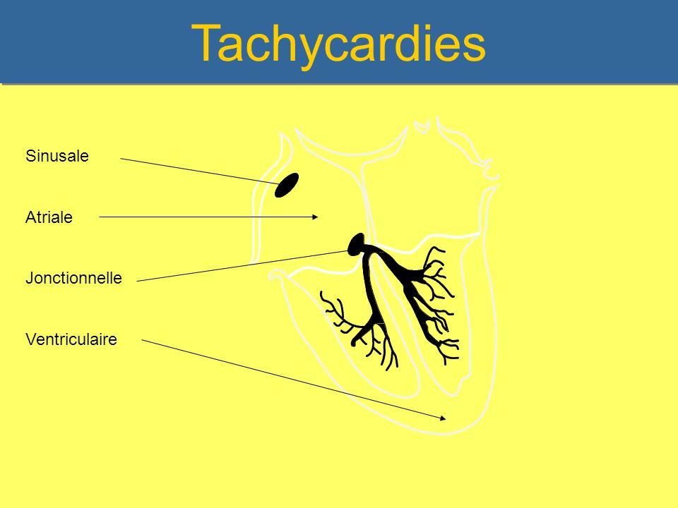 Tachycardies Sinusale Atriale Jonctionnelle Ventriculaire