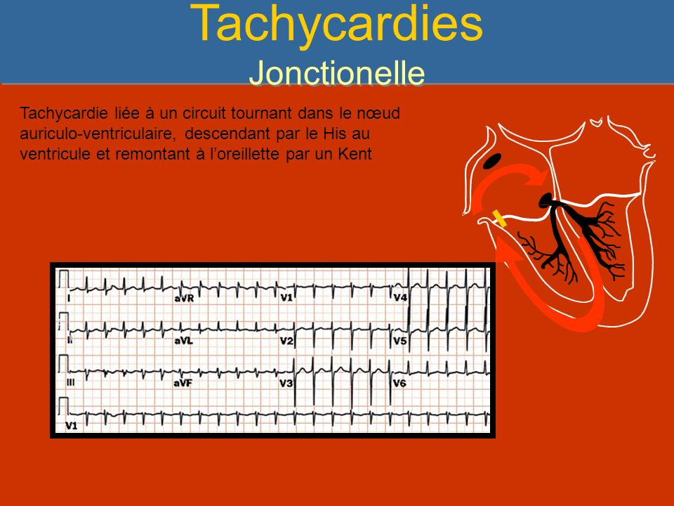 Tachycardies Jonctionelle