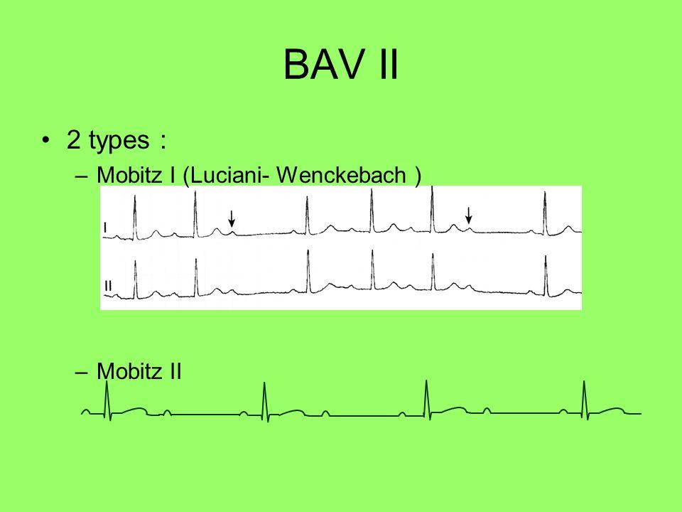 BAV II 2 types : Mobitz I (Luciani- Wenckebach ) Mobitz II