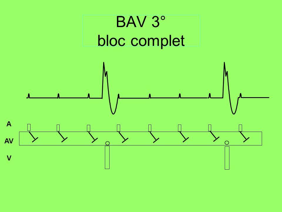 BAV 3° bloc complet A AV V