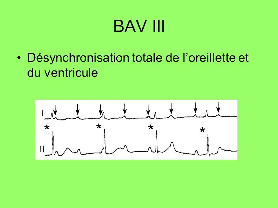BAV III Désynchronisation totale de l'oreillette et du ventricule