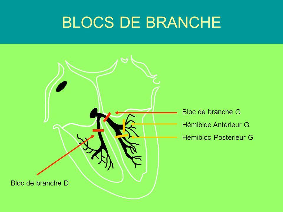 PR Court BLOCS DE BRANCHE < 120 ms Bloc de branche G