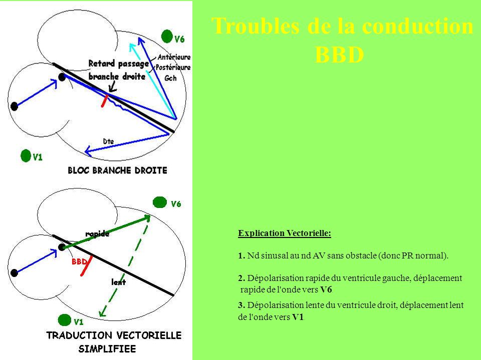 Troubles de la conduction