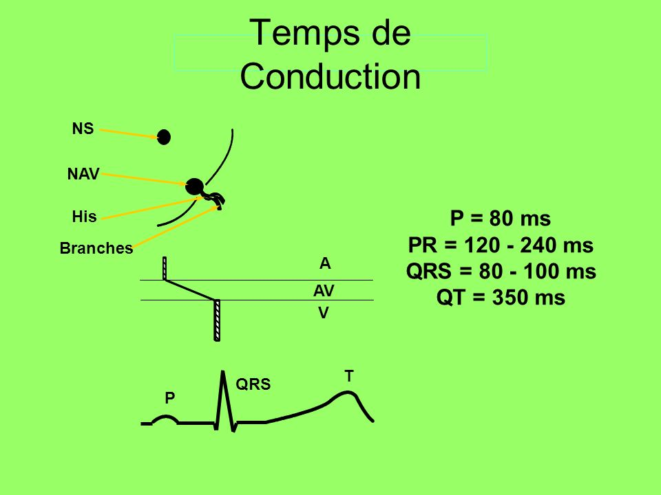 Temps de Conduction P = 80 ms PR = 120 - 240 ms QRS = 80 - 100 ms