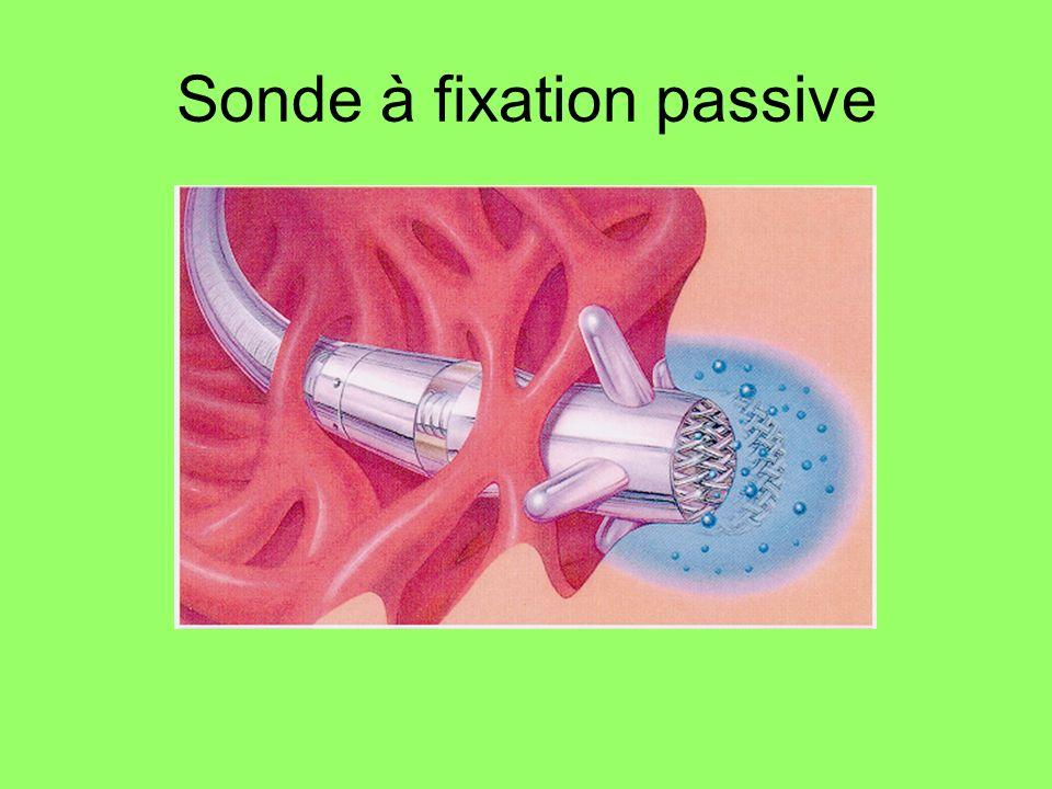 Sonde à fixation passive