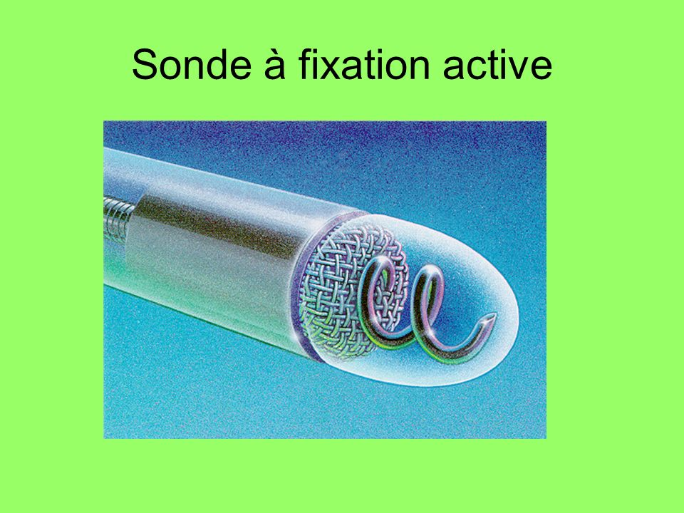 Sonde à fixation active