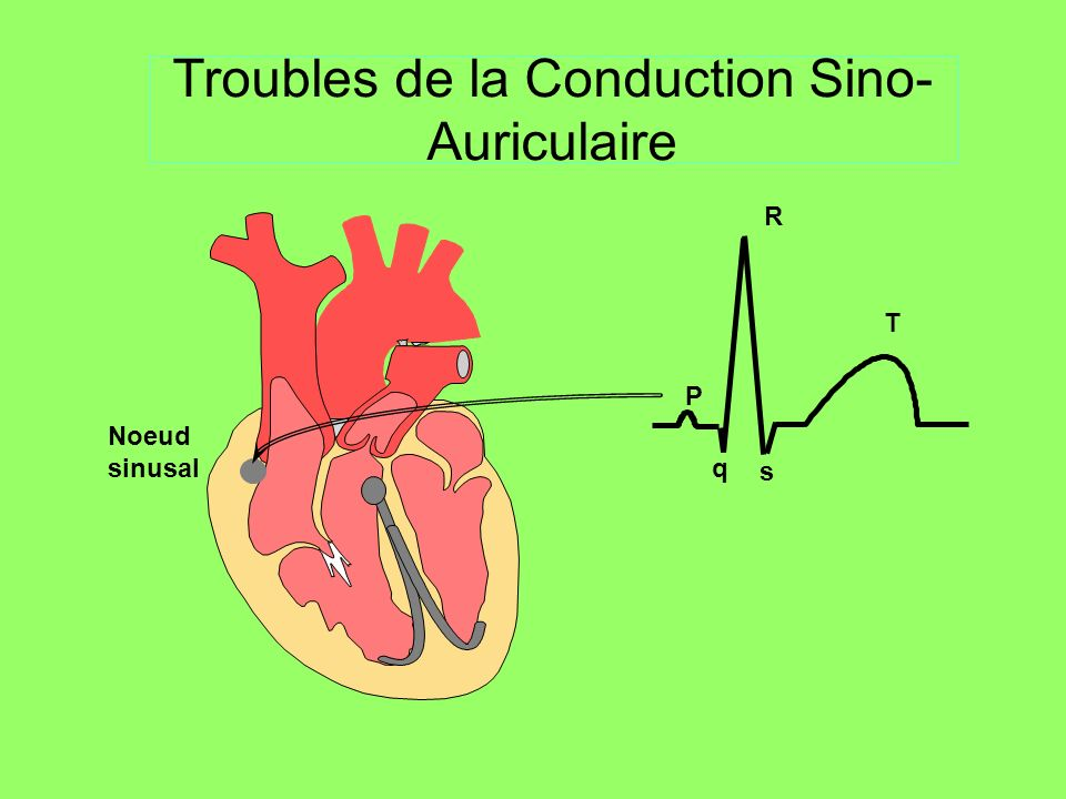 Troubles de la Conduction Sino-Auriculaire