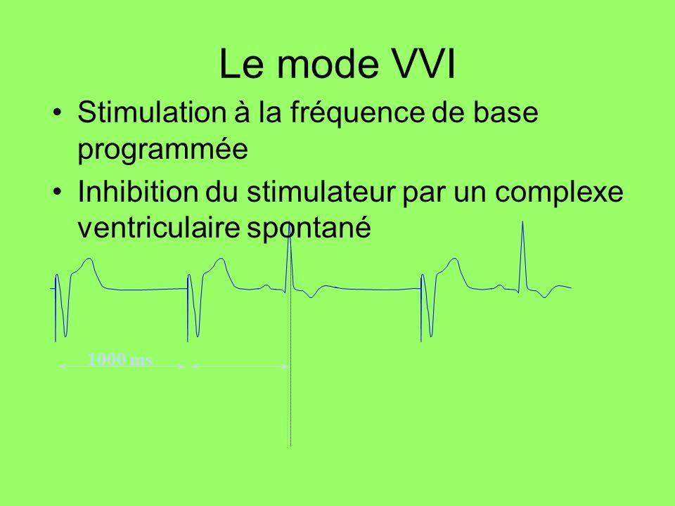 Le mode VVI Stimulation à la fréquence de base programmée