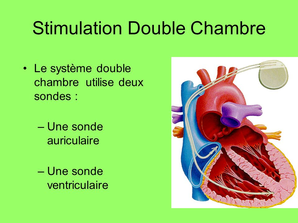 Stimulation Double Chambre