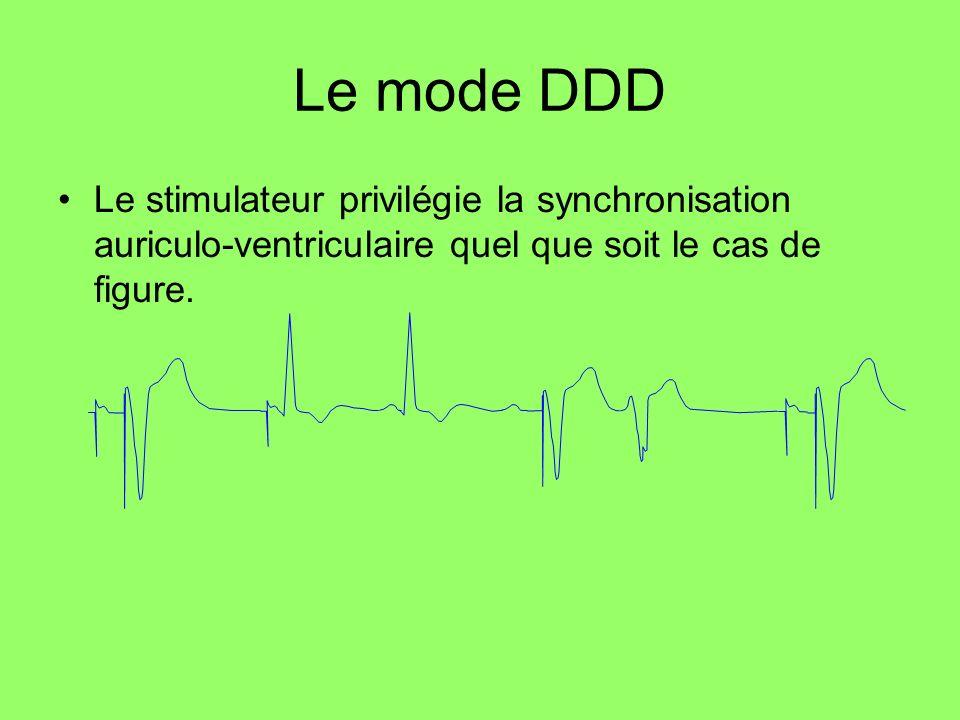 Le mode DDDLe stimulateur privilégie la synchronisation auriculo-ventriculaire quel que soit le cas de figure.