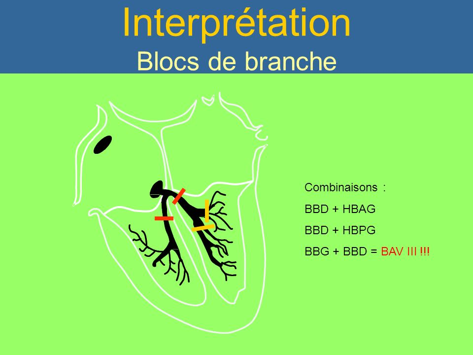 Interprétation Blocs de branche
