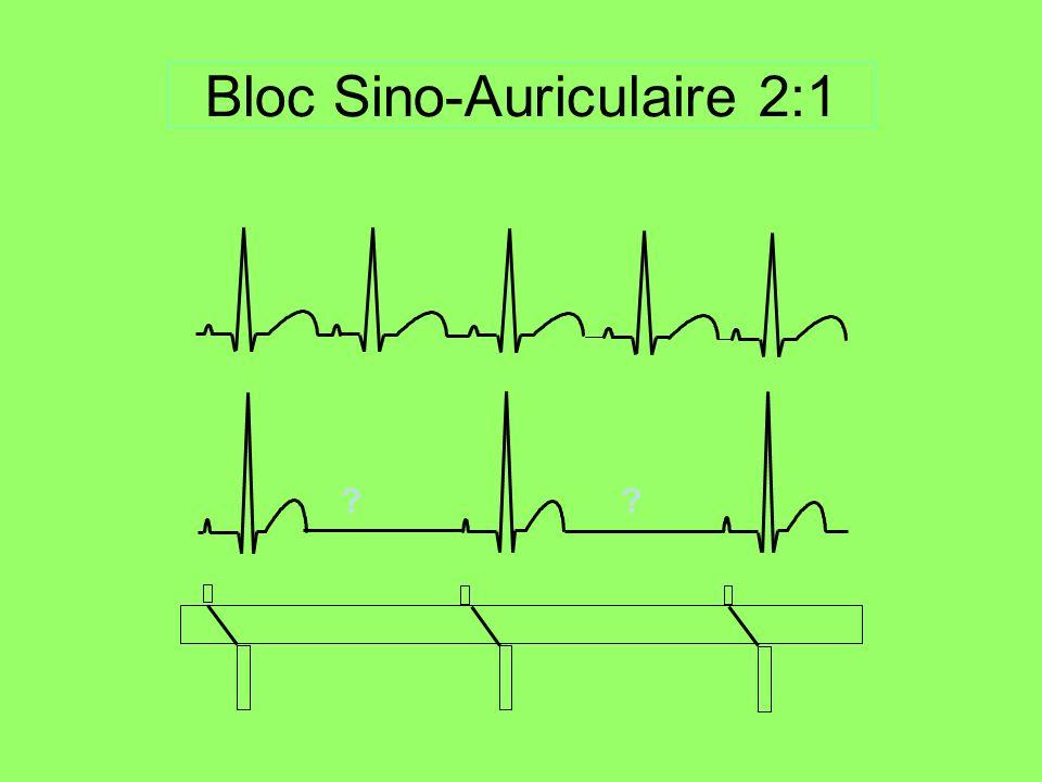 Bloc Sino-Auriculaire 2:1