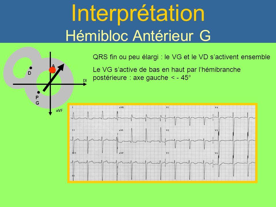 Interprétation Hémibloc Antérieur G