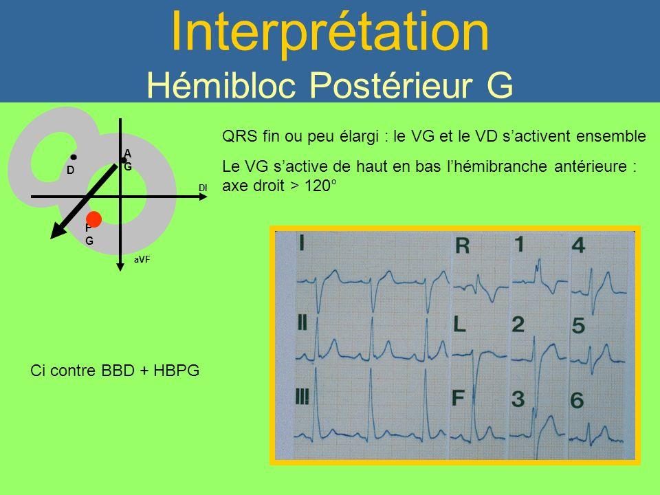 Interprétation Hémibloc Postérieur G