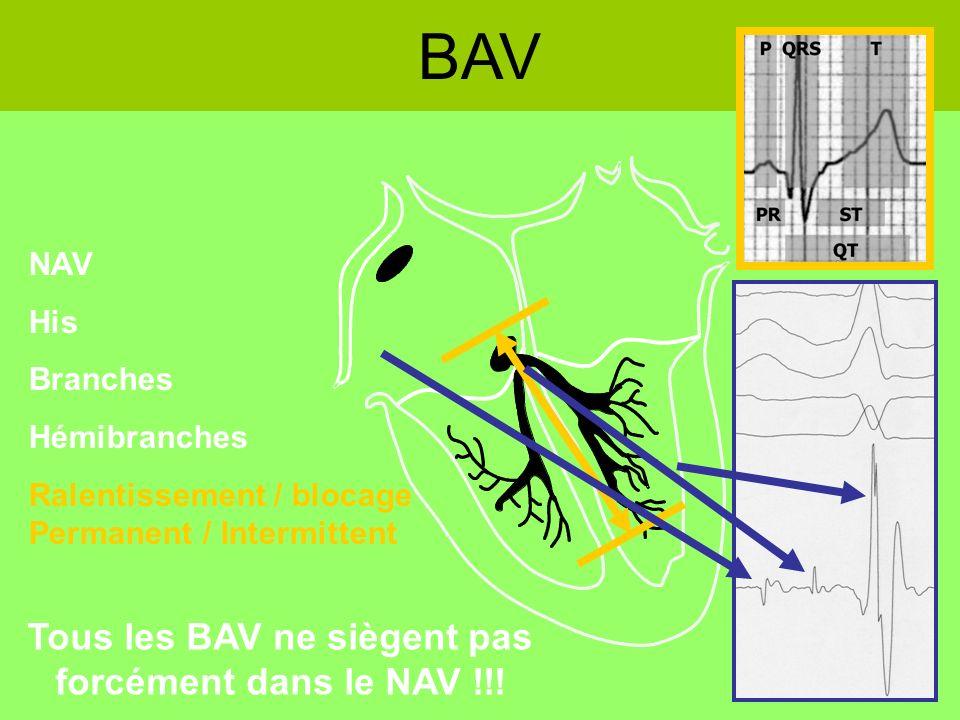 Tous les BAV ne siègent pas forcément dans le NAV !!!