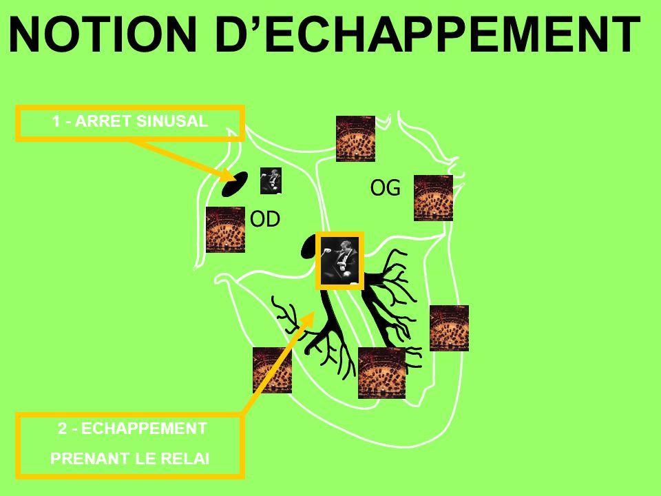 NOTION D'ECHAPPEMENT OG OD 1 - ARRET SINUSAL 2 - ECHAPPEMENT