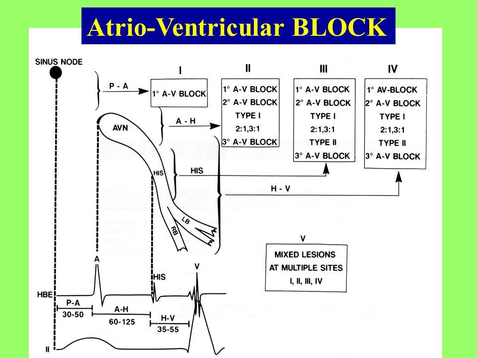 Atrio-Ventricular BLOCK