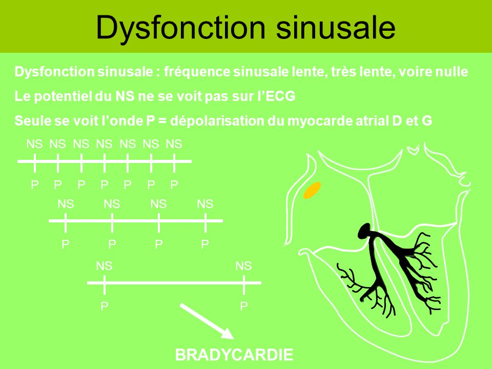 Dysfonction sinusale BRADYCARDIE