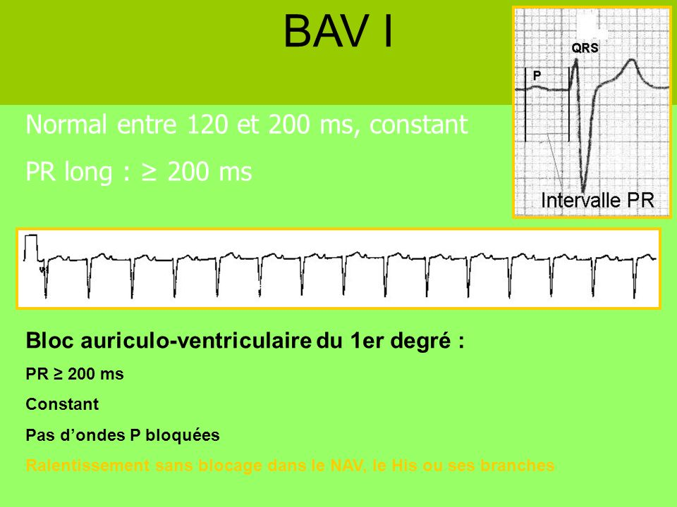 BAV I Normal entre 120 et 200 ms, constant PR long : ≥ 200 ms