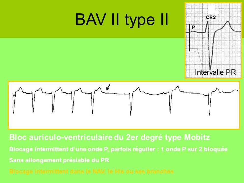 BAV II type II Bloc auriculo-ventriculaire du 2er degré type Mobitz