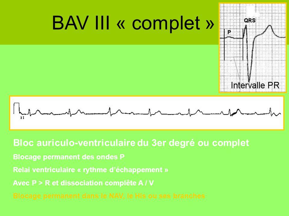 BAV III « complet » Bloc auriculo-ventriculaire du 3er degré ou complet. Blocage permanent des ondes P.