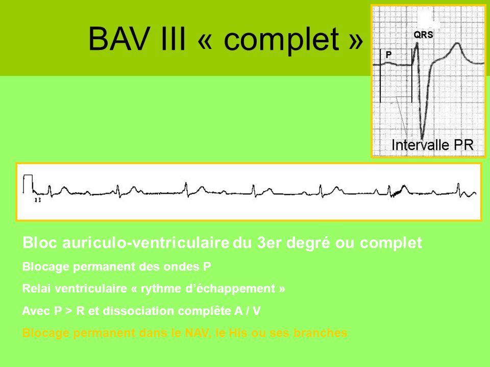 BAV III « complet »Bloc auriculo-ventriculaire du 3er degré ou complet. Blocage permanent des ondes P.