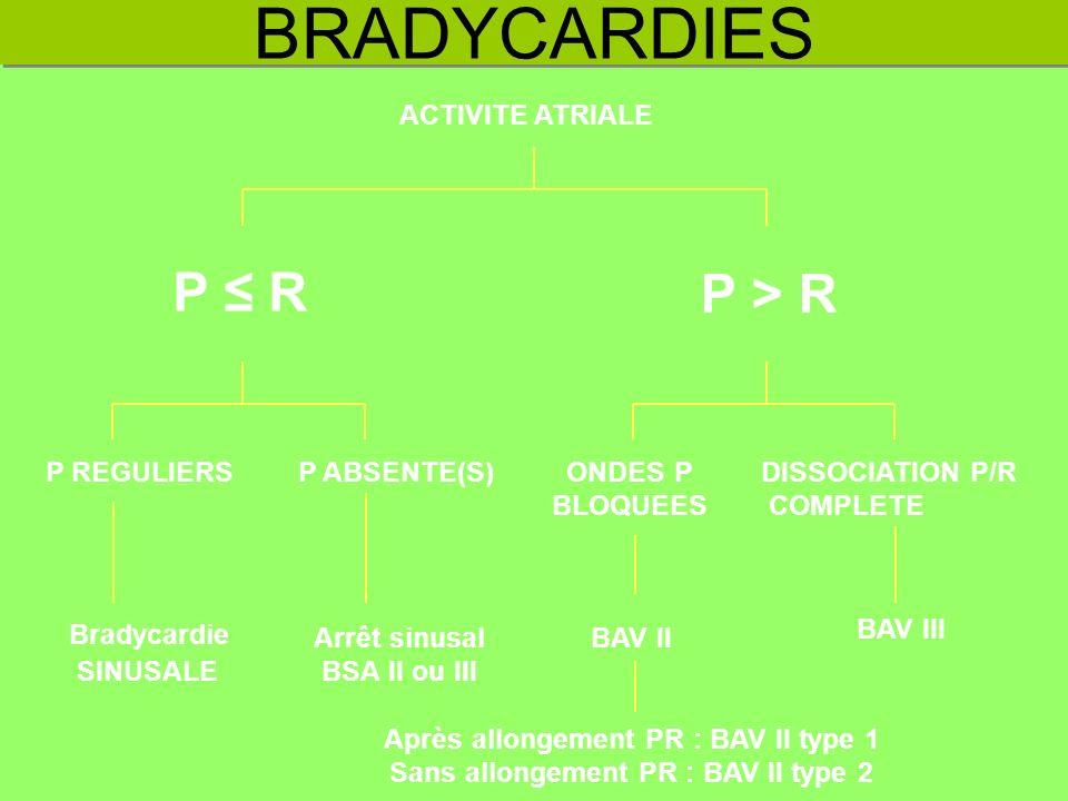 BRADYCARDIES P ≤ R P > R ACTIVITE ATRIALE P REGULIERS P ABSENTE(S)