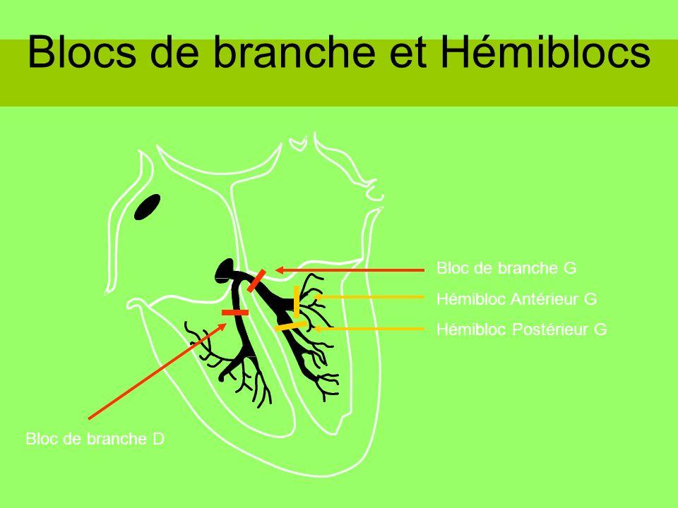 Blocs de branche et Hémiblocs