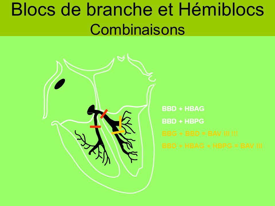 Blocs de branche et Hémiblocs Combinaisons