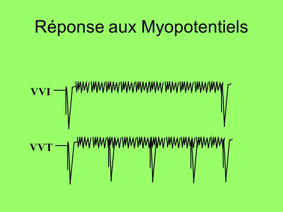 Réponse aux Myopotentiels