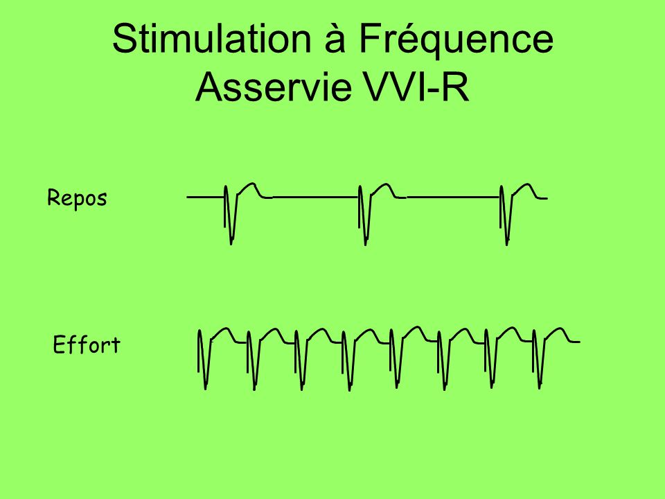 Stimulation à Fréquence Asservie VVI-R