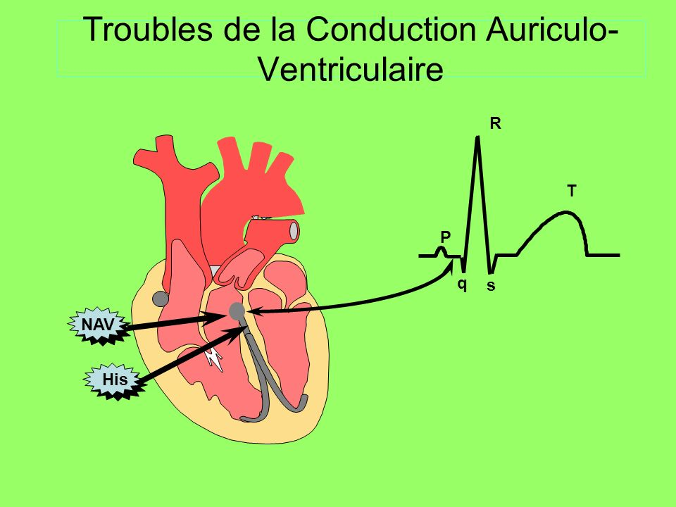 Troubles de la Conduction Auriculo-Ventriculaire