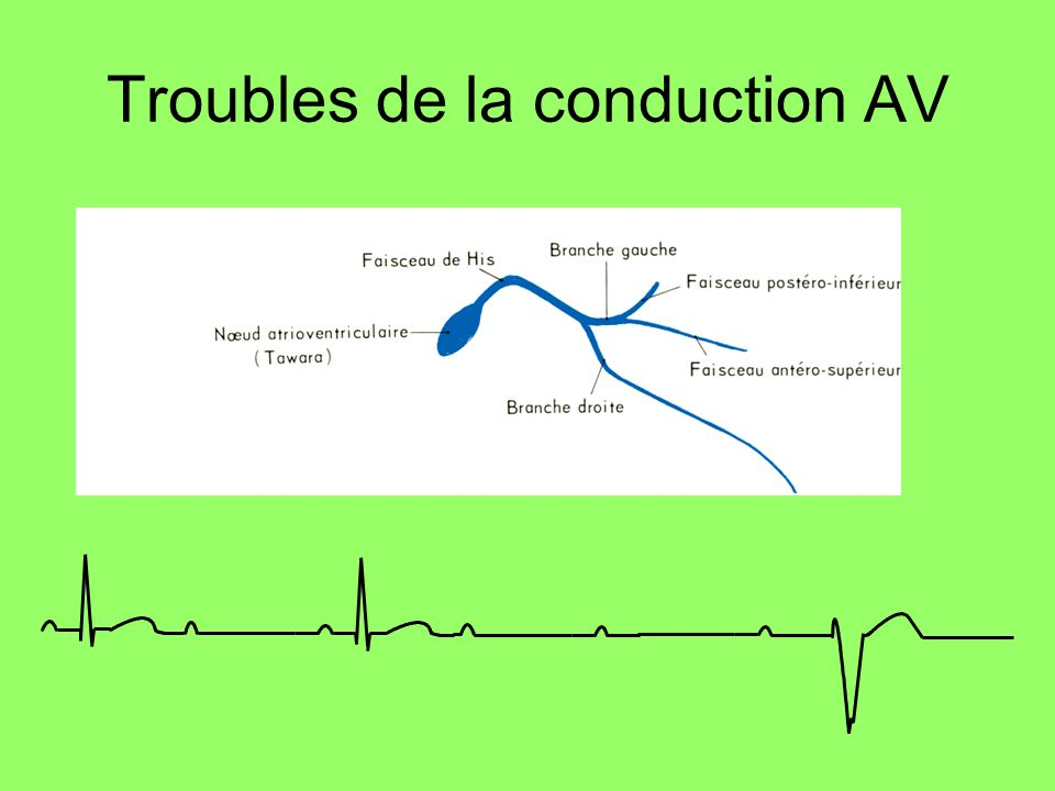 Troubles de la conduction AV