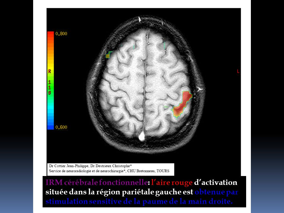 IRM cérébrale fonctionnelle: l'aire rouge d'activation située dans la région pariétale gauche est obtenue par stimulation sensitive de la paume de la main droite.