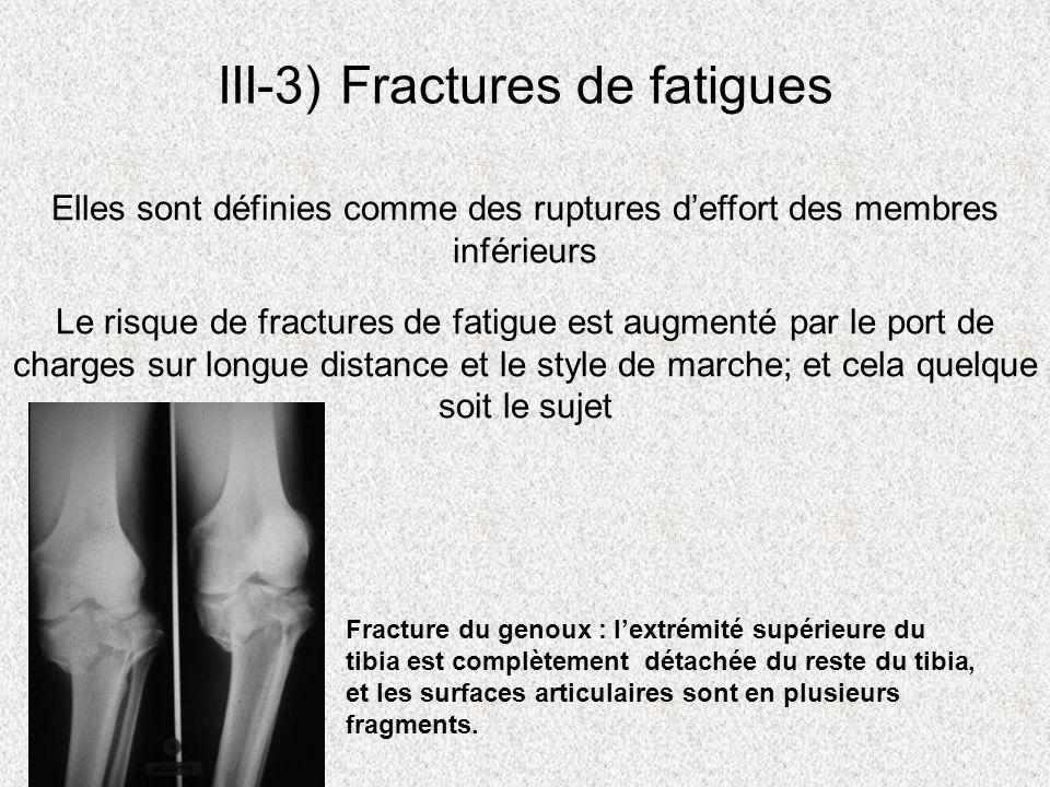 III-3) Fractures de fatigues