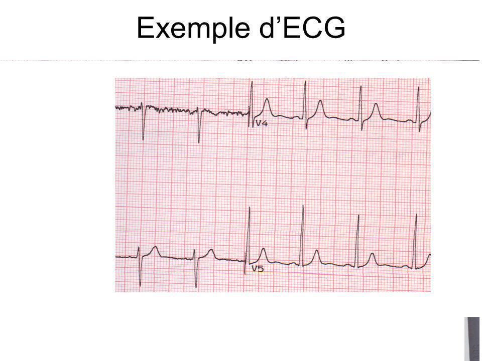 Exemple d'ECG