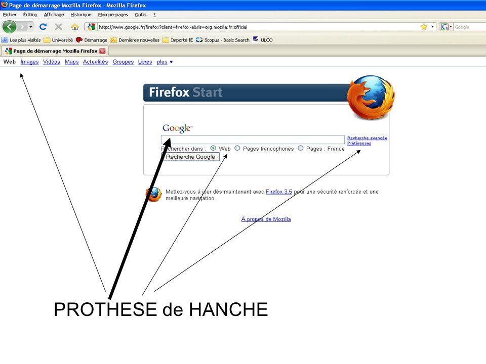 PROTHESE de HANCHE