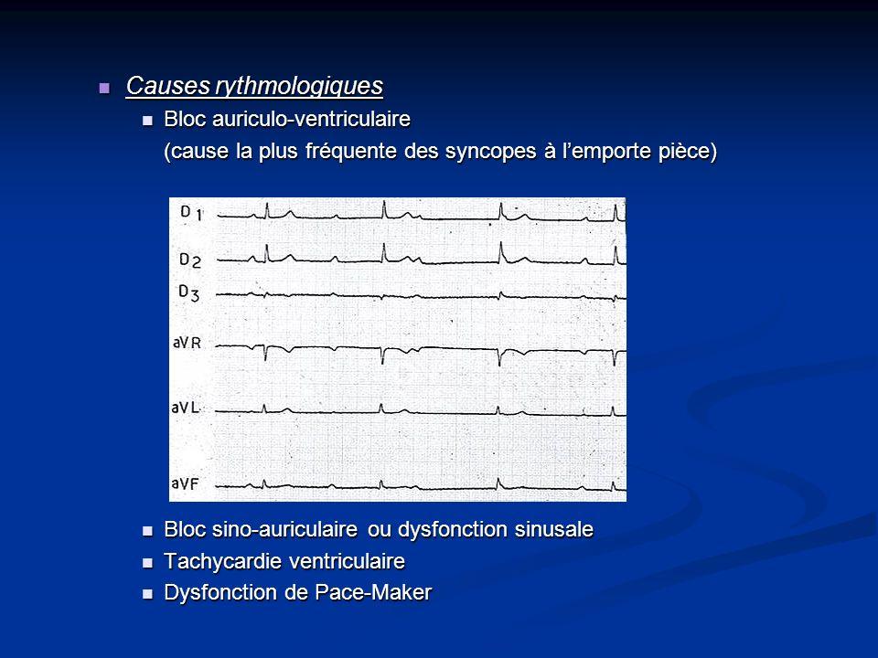 Causes rythmologiques